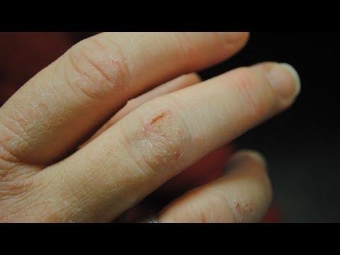 Winter Skin Care - Mayo Clinic