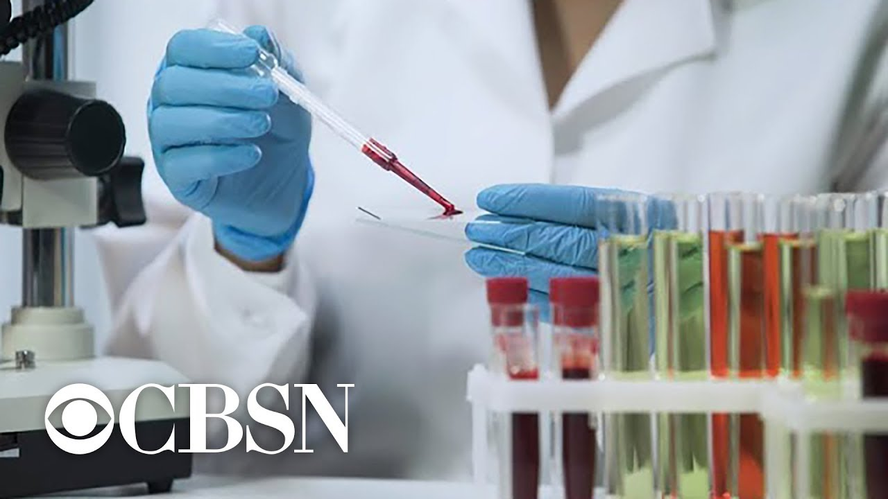 Man with AIDS virus appears cured after stem cell transplant, doctors report