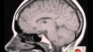 Cysticercosis (multiple) of Brain MRI DISCUSSION