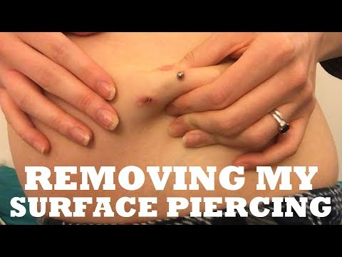 Removing My Surface Piercing | TheTarative
