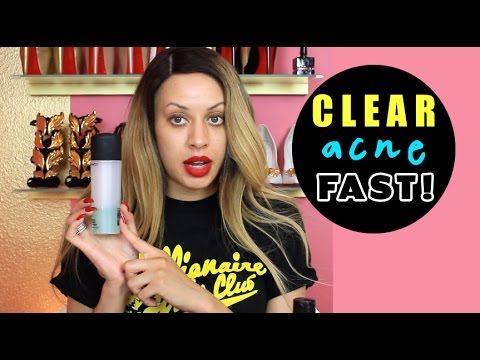 MY SKIN CARE ROUTINE!! (Clear Glowing Skin FAST)