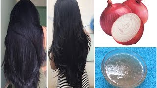 Onion Juice For Extreme Hair Growth | How To Use Onions For Faster Hair Growth