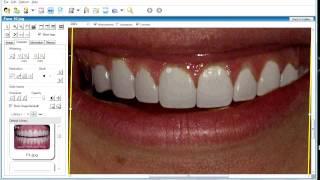 Стоматологическая программа для моделирования улыбки(Идеальная программа для эстетического моделирования улыбки., 2009-09-17T14:47:21.000Z)