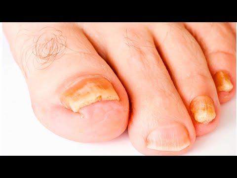ШОК!!! Как вылечить грибок ногтей дома
