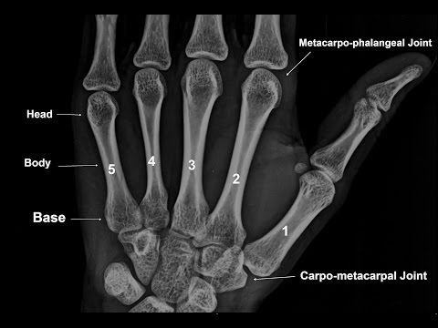 Bones of Palm - The Metacarpal Bones