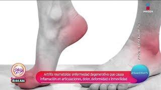 Se artritis dolor de cómo siente el