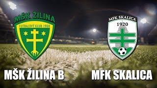 Zilina B vs Skalica full match