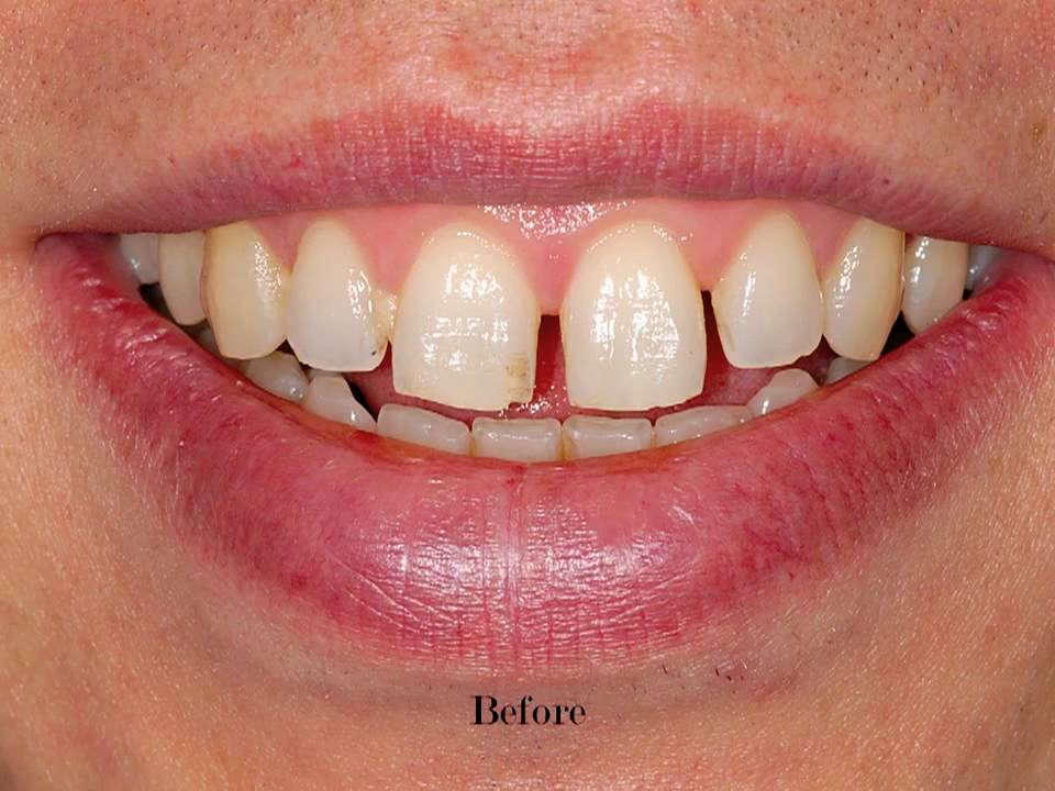 perfect smile veneers минск