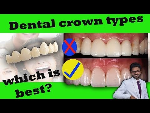 Dental crown types and cost in India/2019/ best dental ...