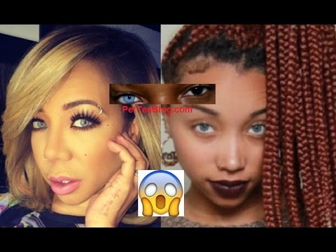 Tiny Harris afraid of going BLIND from Eye Color Surgery didn't want Zonnique FOLLOWING her 😨