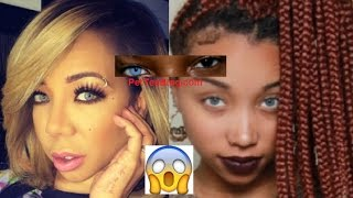 Tiny Harris afraid of going BLIND from Eye Color Surgery didn