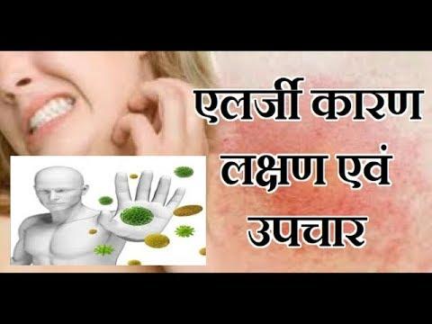 एलर्जी कारण लक्षण एवं उपचार | Allergic Reasons Symptoms & Treatment | eczema | allergies | allergy