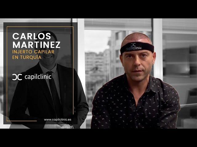 Opinión después del trasplante capilar - Dr Oguz Kayiran