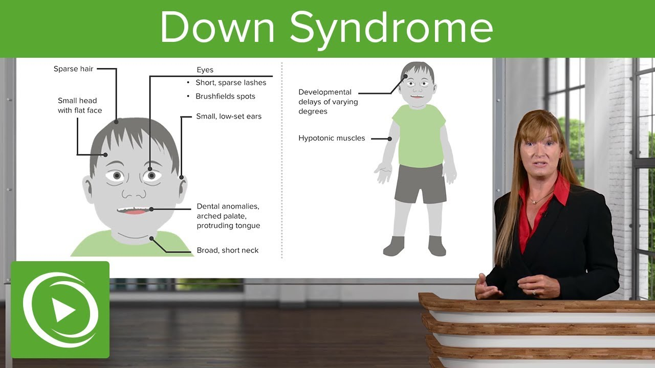 Down Syndrome – Genetics | Lecturio