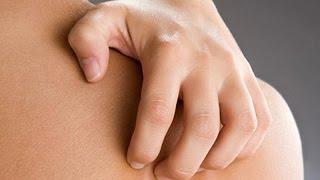 видео Лекарственная аллергия: симптомы и лечение