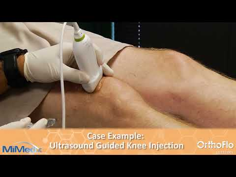 LQ132 001 OrthoFlo Knee Video