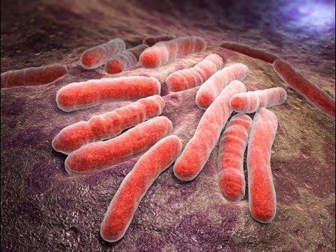 Health Officials Concerned Over Tuberculosis Outbreak in Minnesota