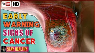 Gambar cover 8 Early Warning Signs of Cancer  Most People Ignore