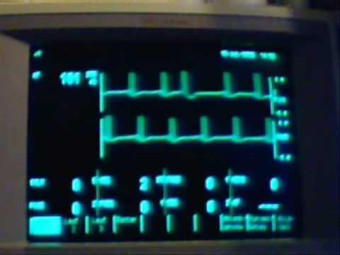 arrhythmic ECG / EKG with auscultation heartbeat sound