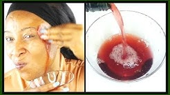 hqdefault - Does Red Wine Help Acne