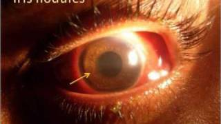 Ophthalmology - Uvea Class2: Common causes Part2
