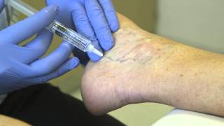 Louisville vein ky clinic
