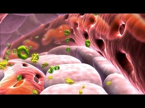 Сахарный диабет: симптомы, признаки, причины возникновения