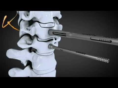 arthrodèse cervicale