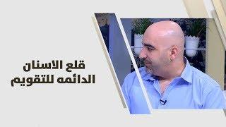 د. خالد عبيدات - قلع الاسنان الدائمه للتقويم