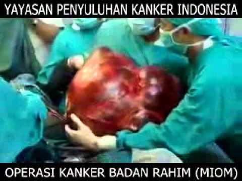 Operasi kanker badan rahim (myom)