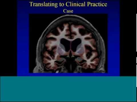 04.15.14 Dr. James Brewer: Assessment of Cognitive Impairment Webinar