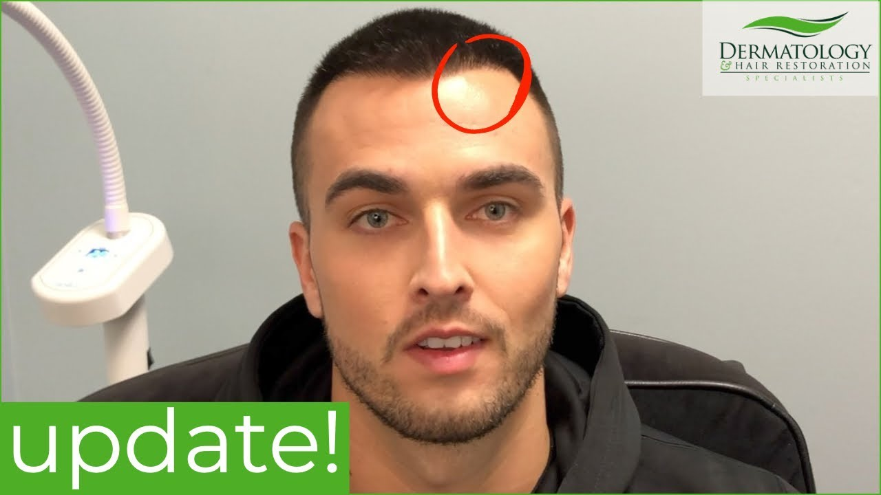 Hair Transplant One Year Update Los Angeles Youtube