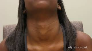 IB Long Neck with a Female Adam's Apple