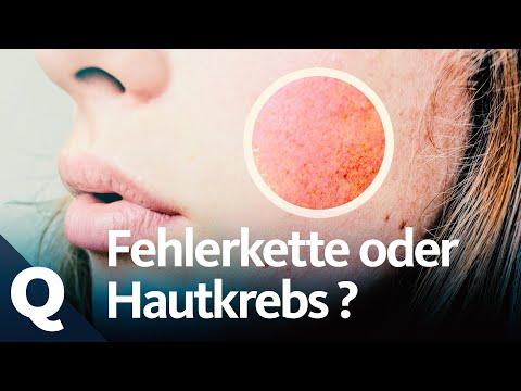 Wie Aus Sonnenbrand Hautkrebs Entstehen Kann | Quarks