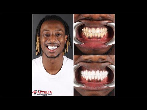 Tizzy (Hip-Hop/Rap) | Attelia Dental Turkey