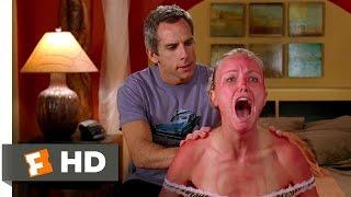 The Heartbreak Kid (6/9) Movie CLIP - Savage Sunburn (2007) HD