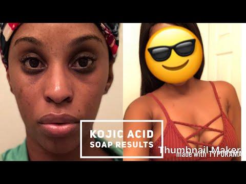 Kojic acid soap ( update ) 1 month