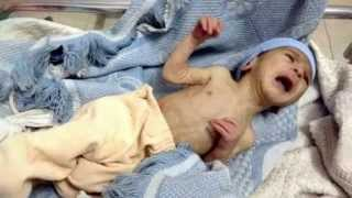 Syrian Children are Starving to Death