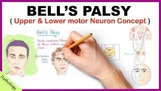 Bell's palsy Upper and Lower Motor Neuron Lesions - Simplified