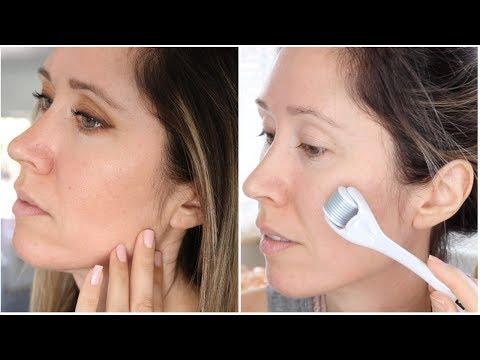BANISH Acne Scars   Scar Treatment Routine