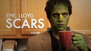 Scars - EpicLLOYD ft. Nice Peter