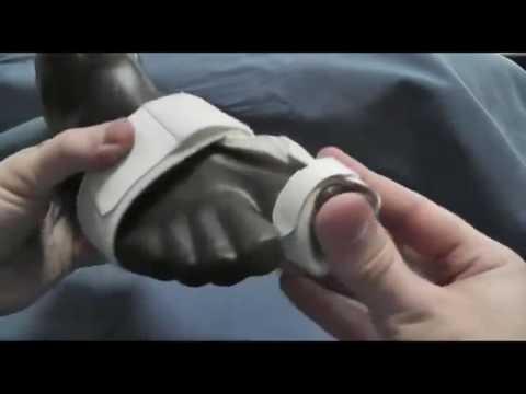 Чернеет Ноготь На Большом Пальце Ноги [Ноготь На Большом Пальце Ноги]
