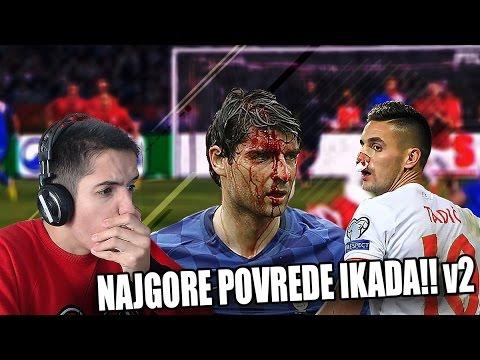NAJGORE POVREDE IKADA!!! v2 | FIFA