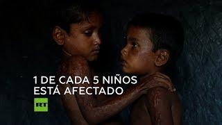 Paren la guerra contra los niños, pide la ONG Save The Children