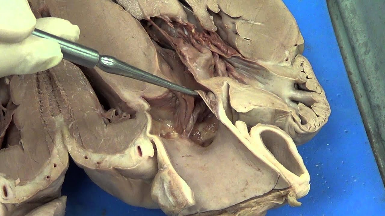 cow circulatory system diagram 1990 honda crx wiring heart dissection (pig) - youtube