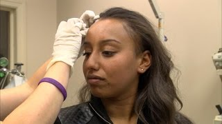 New Treatment May Regrow and Thicken Hair Without Surgery