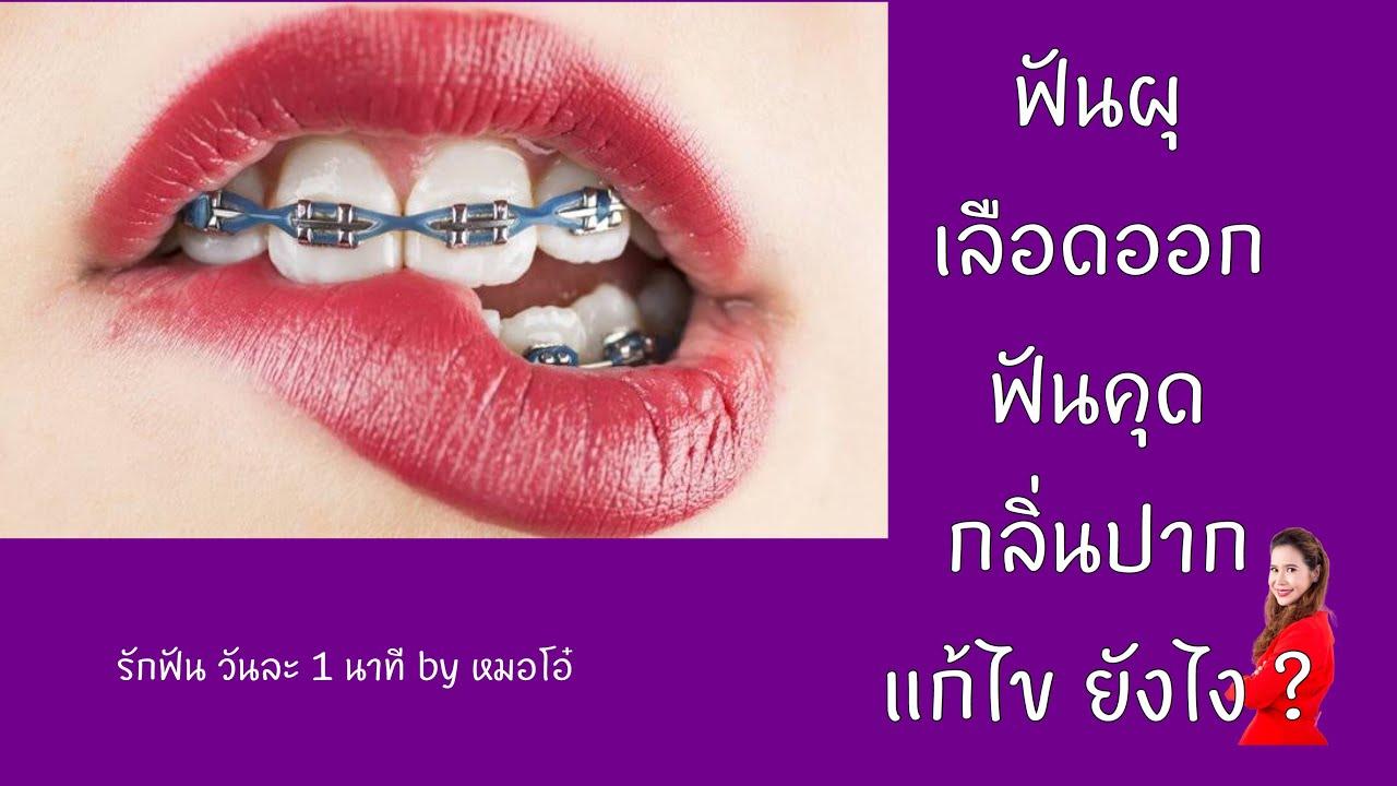 ปรึกษา จัดฟัน เหงือกอักเสบ ฟันคุด เลือดออกตามไรฟัน ปัญหา กลิ่นปาก  ฟันผุ แก้ไข ยังไง