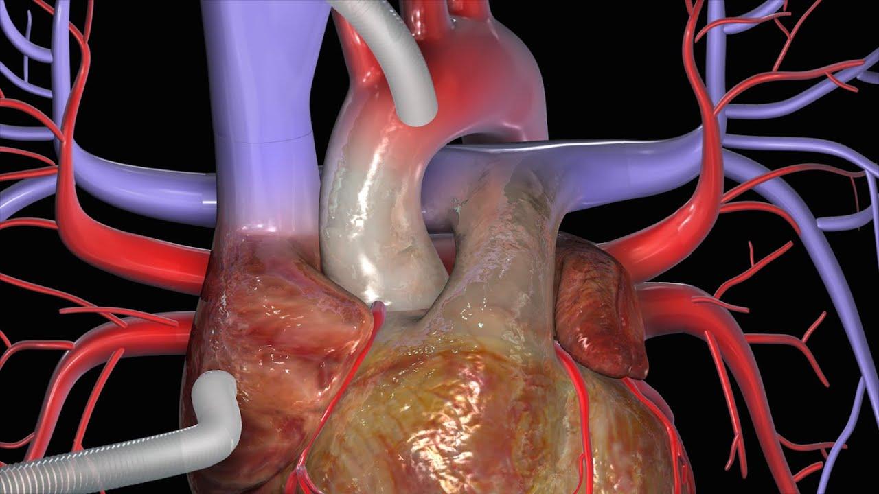 Cardiovascular Disease Diagram Coronaire Bypass Cabg Youtube