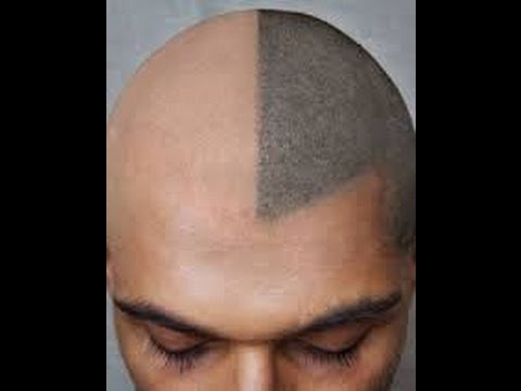 Ouflage Your Thinning Hair With A Tattoo