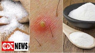 5 solutions naturelles pour éliminer les poils incarnés | CDT NEWS